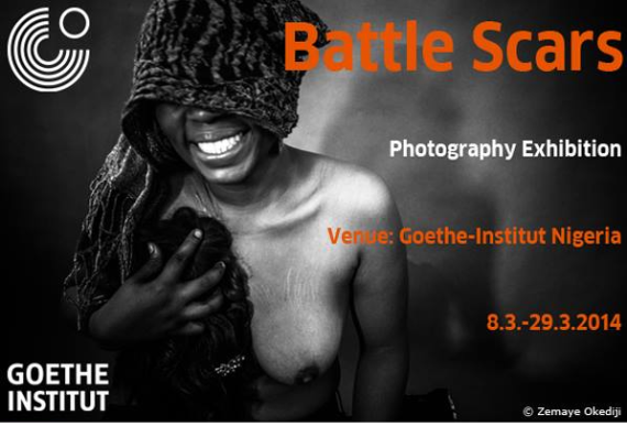 Upcoming photography exhibition: Battle Scars